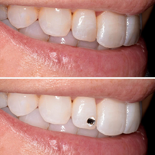 Before and after of tooth gem in top incisor
