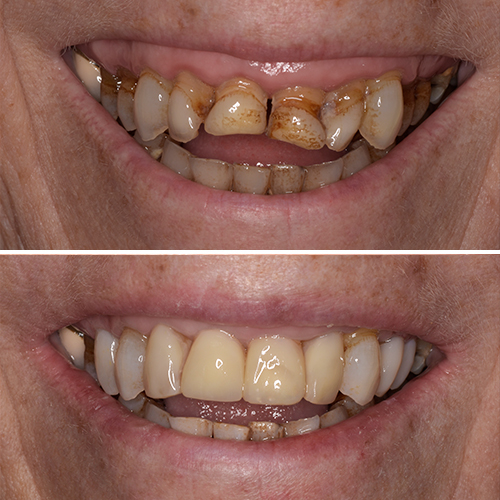 Before and after of dental work using restorative treatments to get back a fantastic smile.