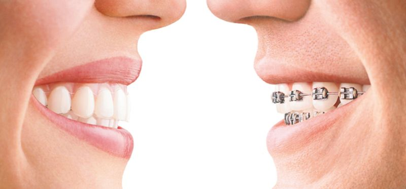 Zahnspange Invisalign links - konventionelle festsitzende Zahnspange rechts