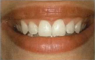 Zahnarzt in Aarau informiert über Zähnebleichen (nachher)