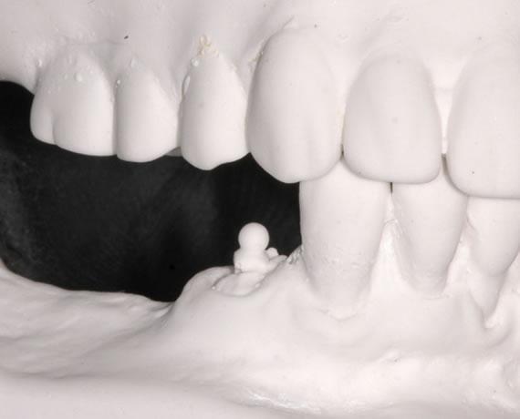 Hybridprothese mittels eines Druckknopfes festgehalten