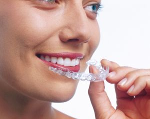 Invisalign Zahnspange: Funktionsweise