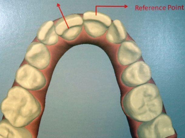 Zahnstellungskorrektur Beispiel