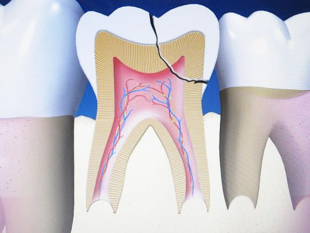 Zahnunfall - Zahn abgebrochen