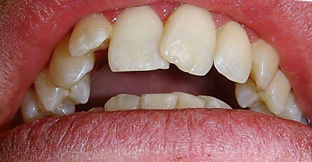 Zahnstellungskorrektur mit Zahnspange Invisalign