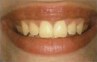 Zahnarzt in Aarau informiert über Zähnebleichen (vorher)