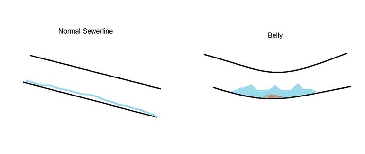 Description of normal sewerline vs. belly