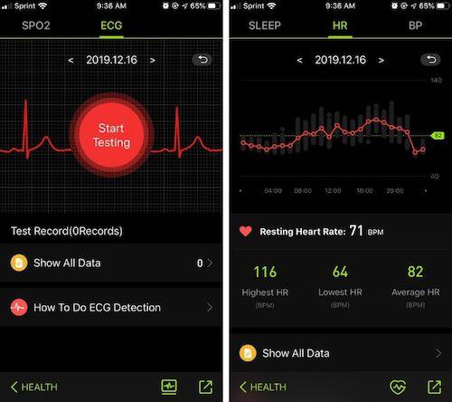 MorePro ECG Reading on App