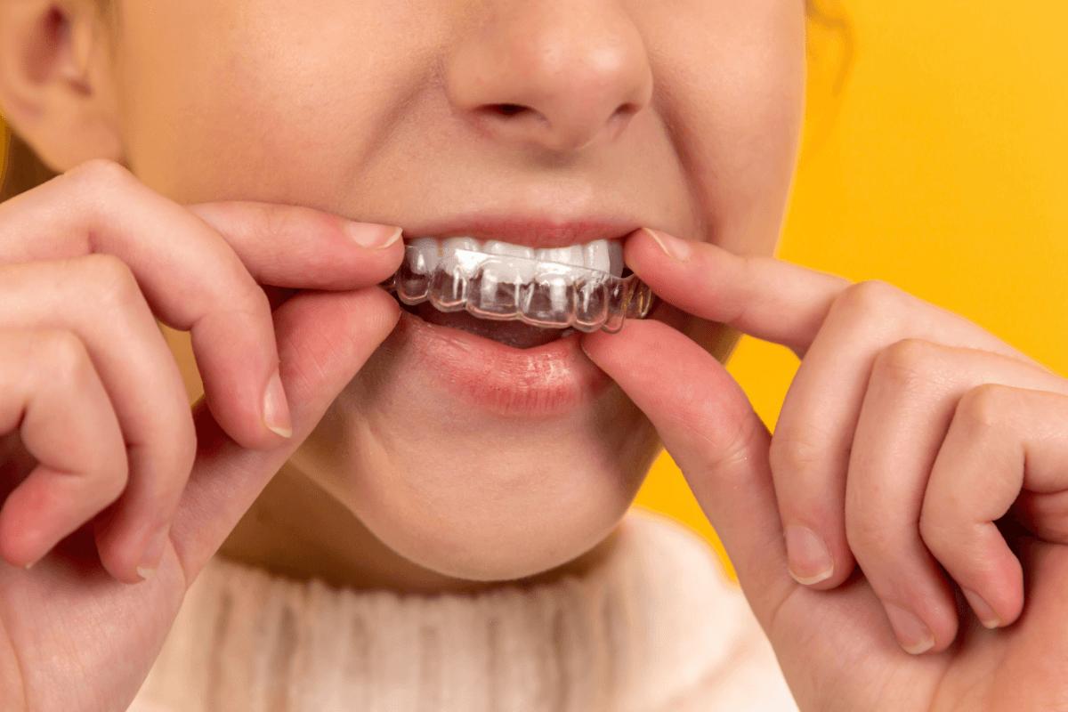 Invisalign Chandler AZ Chandler Dentistry