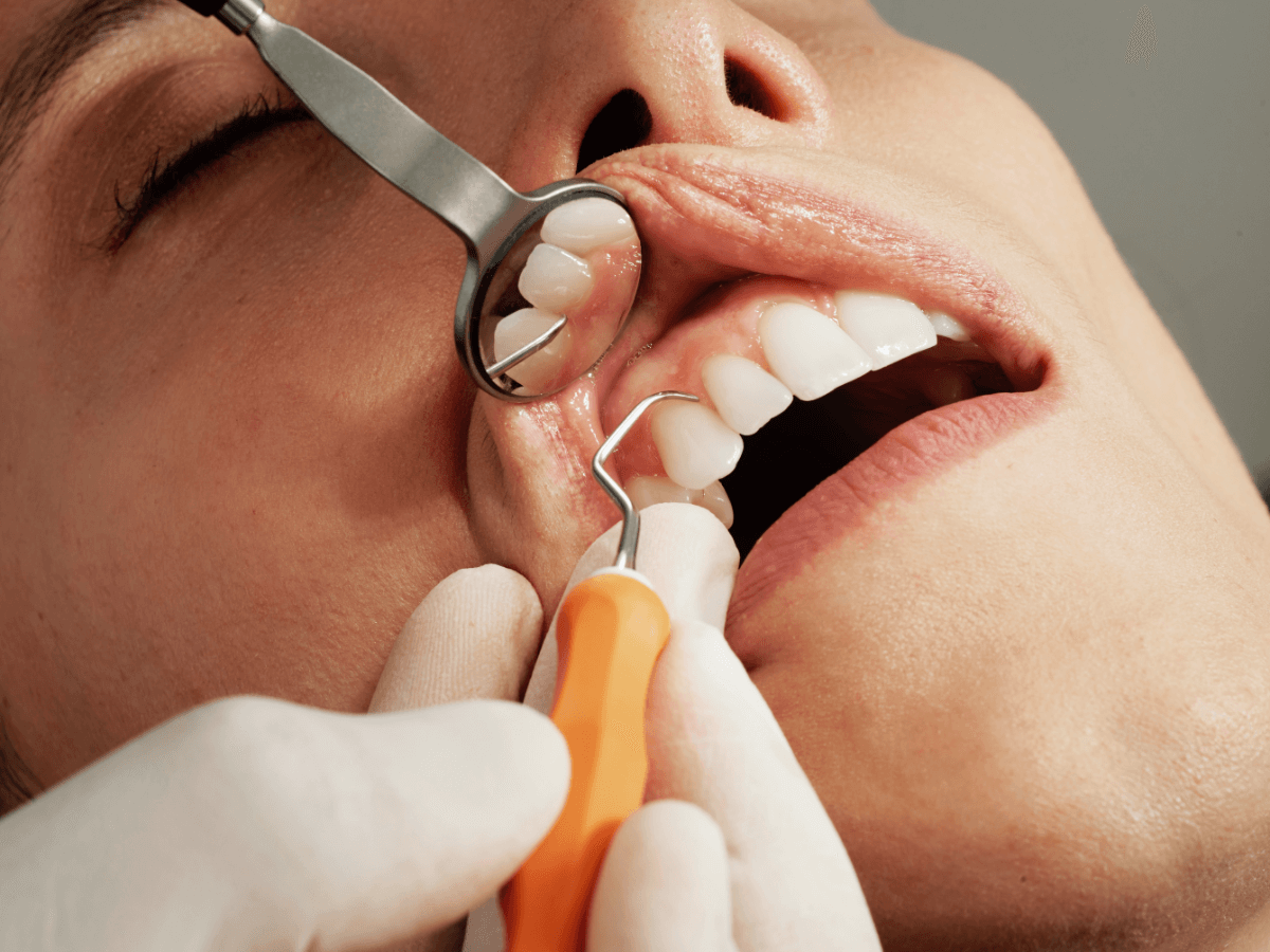 Oral Cancer Screening being done on a patient at Chandler Dentistry