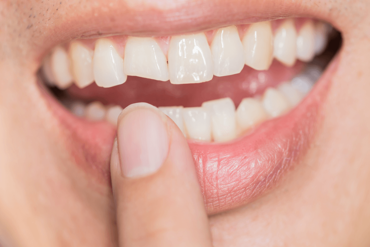 Image of a chipped tooth