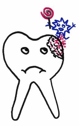 Bakterien-Säuren führen zu Karies