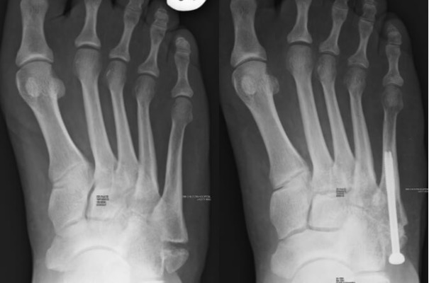 Foot and Ankle Fracture Treatment