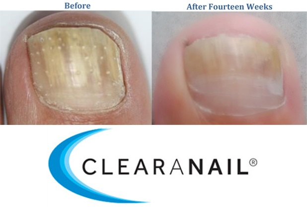 ClearNail Fungal nail treatment at Diablo Foot Ankle in Walnut Creek California