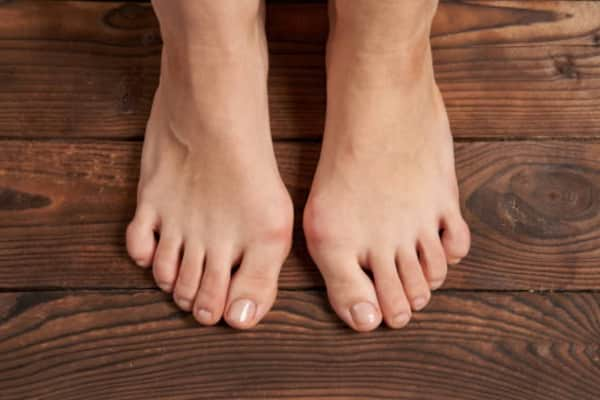 How to Treat Bunions and Bunion Pain Without Surgery