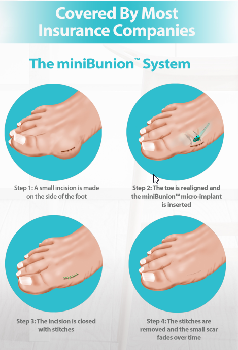 The miniBunion Surgery System offered by Diablo Foot and Ankle.