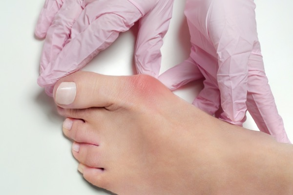Bunions: 3 Signs You Need Surgery