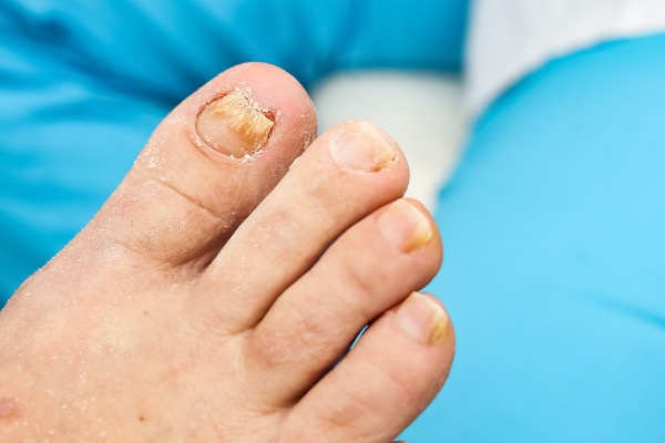Fungal Nail: Our Best Tips to Prevent Reinfection