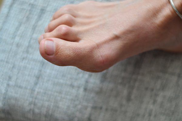 Hammer Toe: Causes and Treatment Options