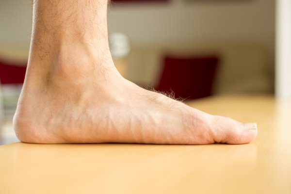 Flat Feet: Causes and Symptoms