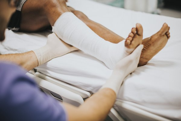 Foot Fracture vs. Foot Sprain: What Are the Main Differences?