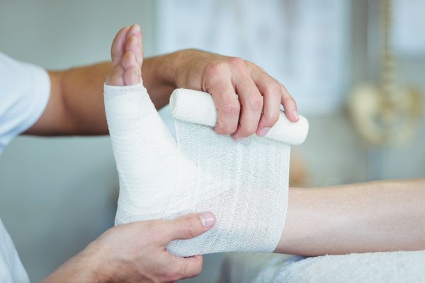 Bunion Surgery: What to Expect During Recovery