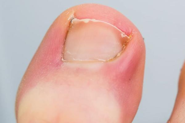 Ingrown Nails: What Causes Them? What Are the Treatment Options?