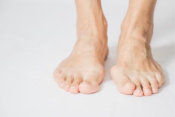 Bunion Deformity: How Metatarsal Foot Surgery Can Help