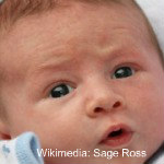 a Newborn rash is one of the top 10 things that can freak you out about a newborn baby.