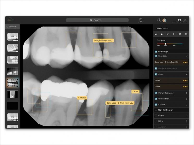 Dental Pathology Detection Technology Gets CE Certification