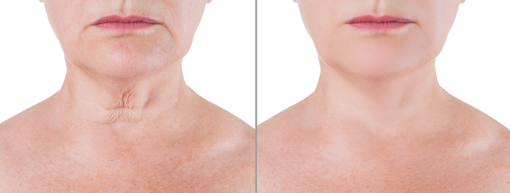 Lower Face/ Neck Lift