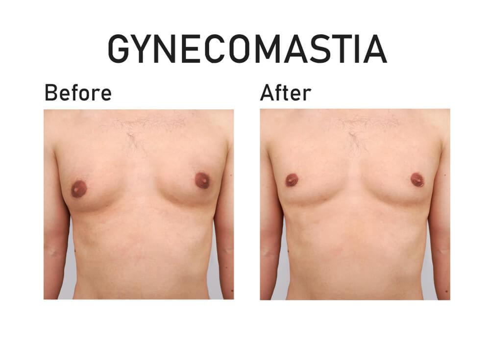 Gynaecomastia Correction