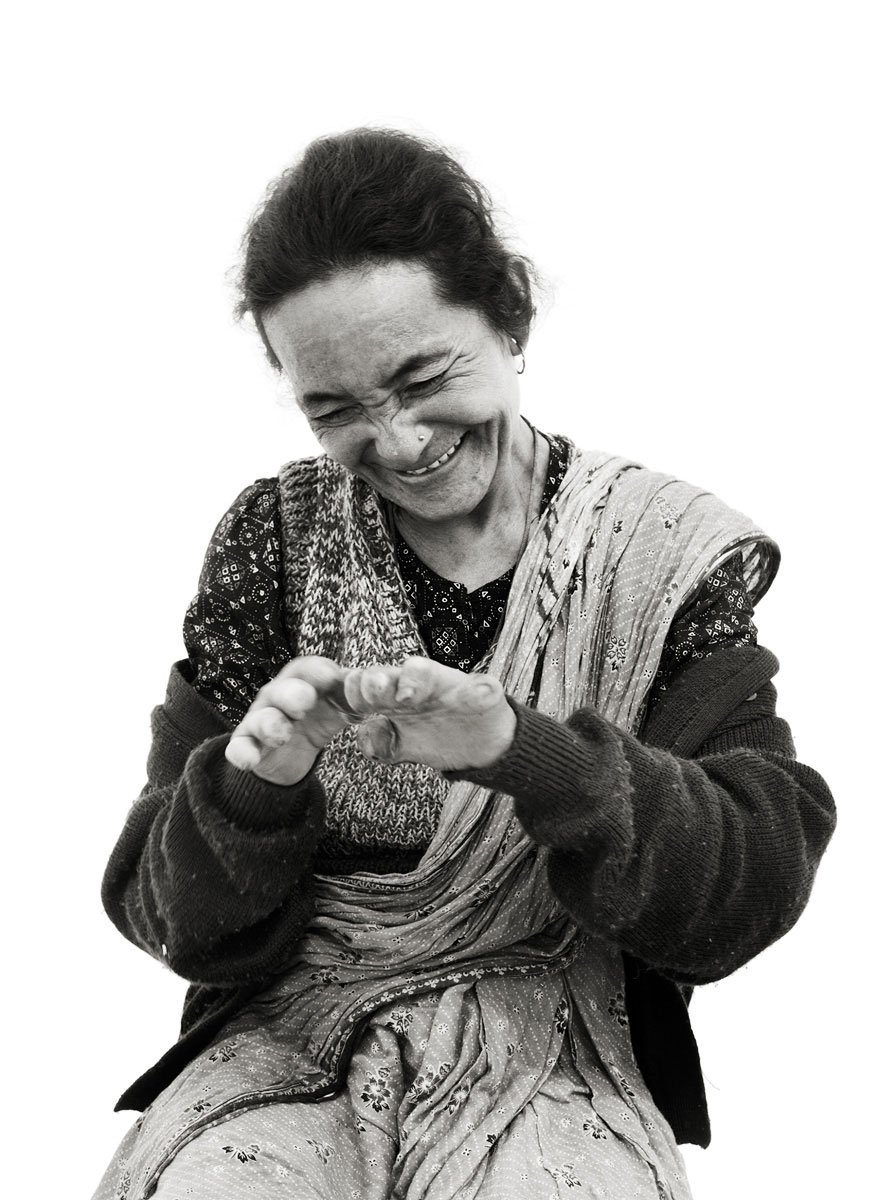 Leprosy photography by Christopher Thomas