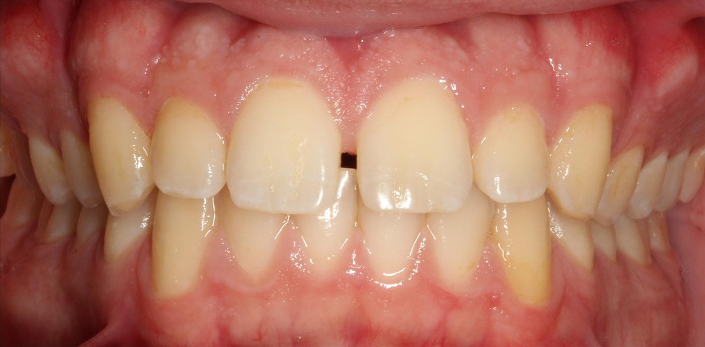 before treatment image