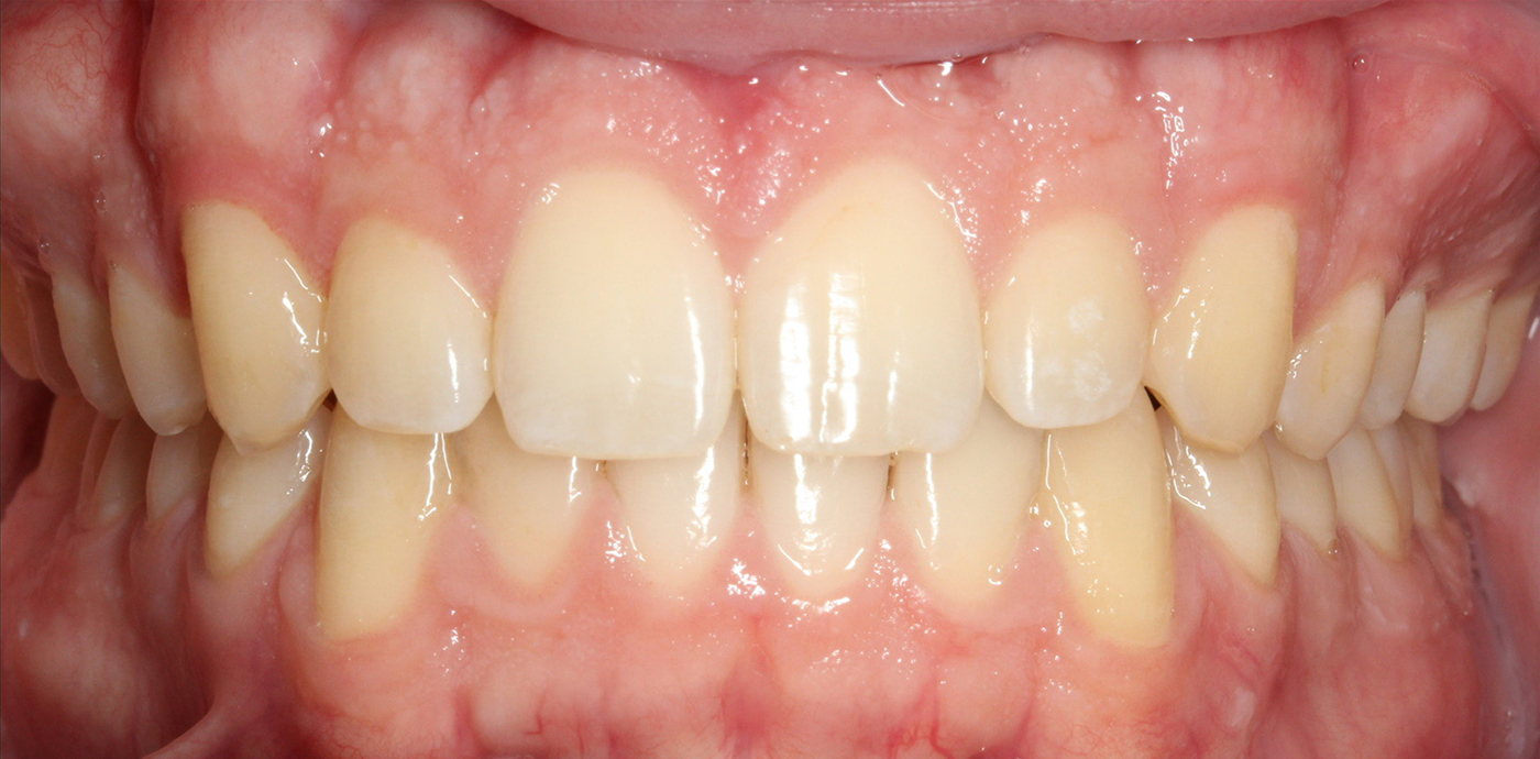 after treatment image