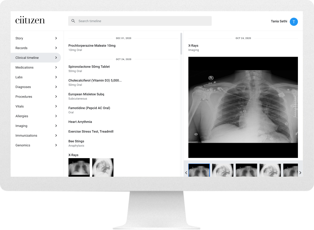 Desktop screen of search detail - xrays (after)