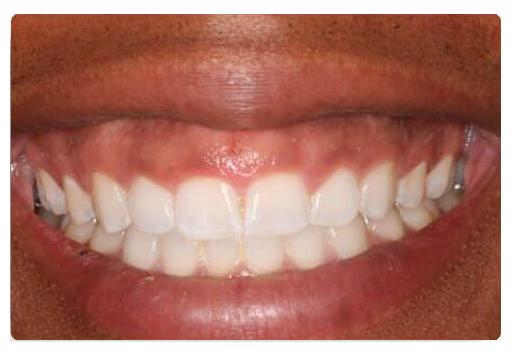gummy smile before