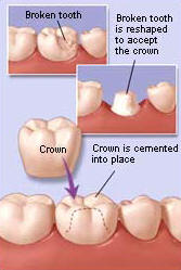 Dental Crowns/Caps