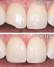 Tooth bonding, before and after images