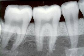 Partial X-ray of Teeth