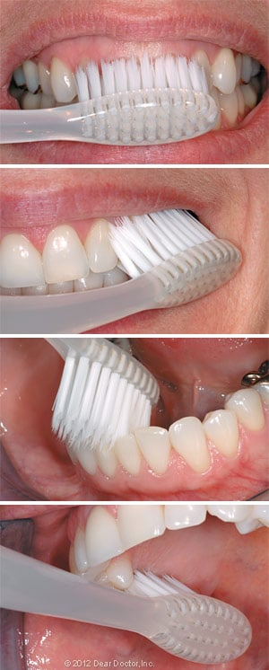 Steps for brushing your teeth