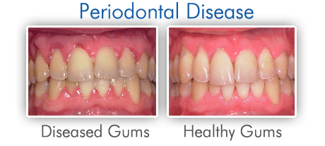 The causes of Periodontal Disease can be diagnosed by a dentist