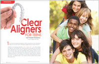Clear Aligners - Dear Doctor Magazine