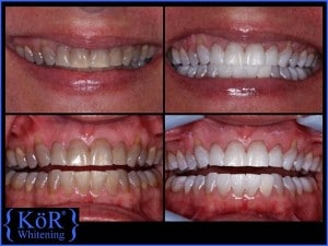 Whitened Teeth with the Kor system