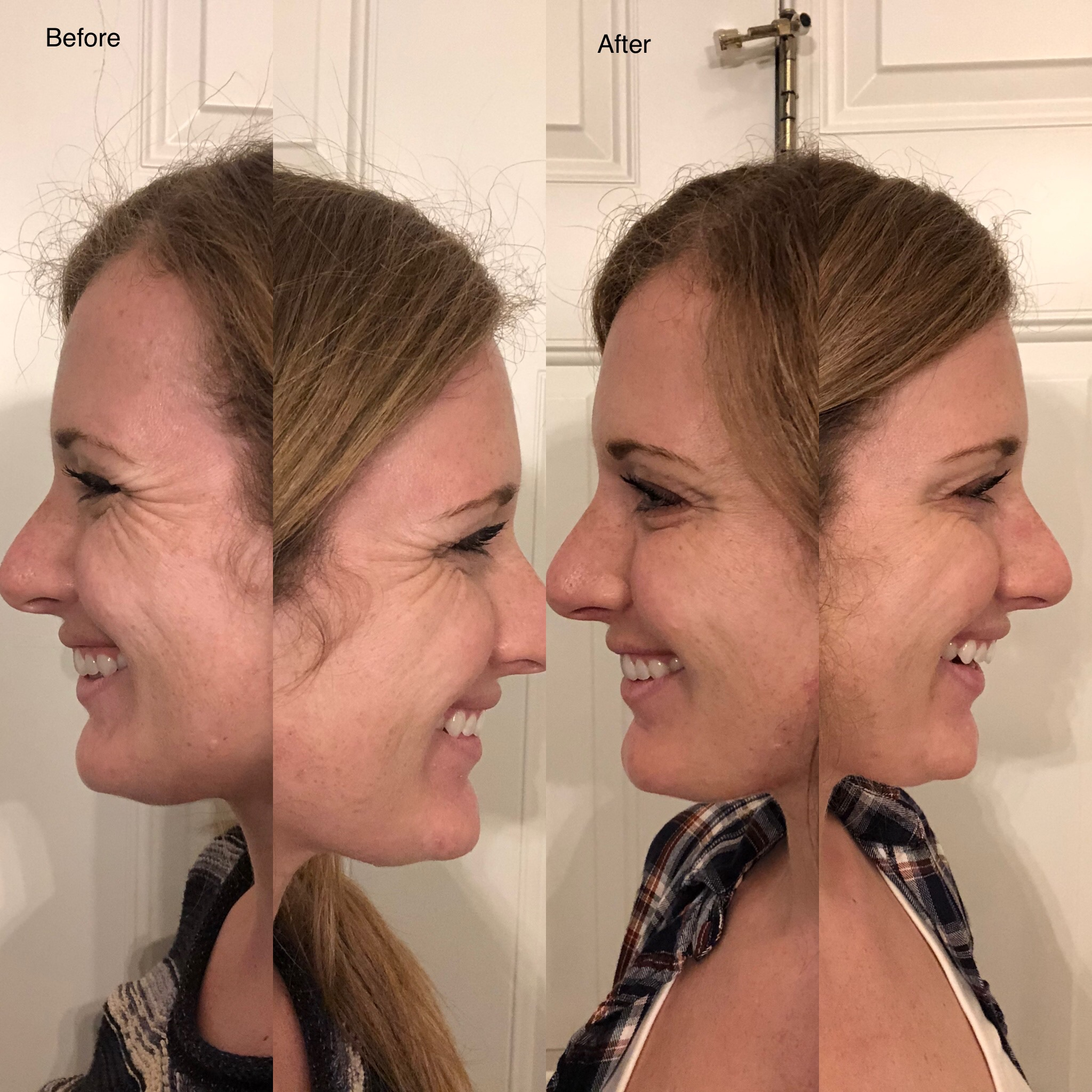 One of the target areas for botox is smile lines