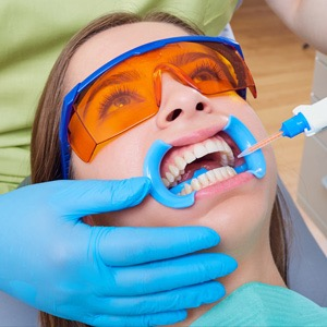 patient having their teeth whitened