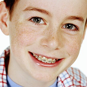 boy with braces on his teeth
