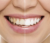 whiten teeth at home vs at the dentist office