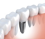 Major Benefits for Tooth Replacement