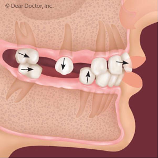 missing back tooth dental implants